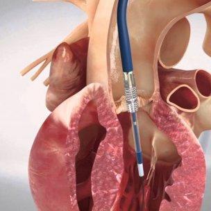 stenosi-della-valvola-aortica-i-vantaggi-della-procedura-tavi-770x459